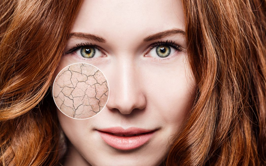 The Best Remedies for Dry Skin Sudbury La Renaissance